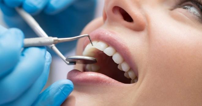 Популярные услуги стоматологии – от лечения до отбеливания зубов