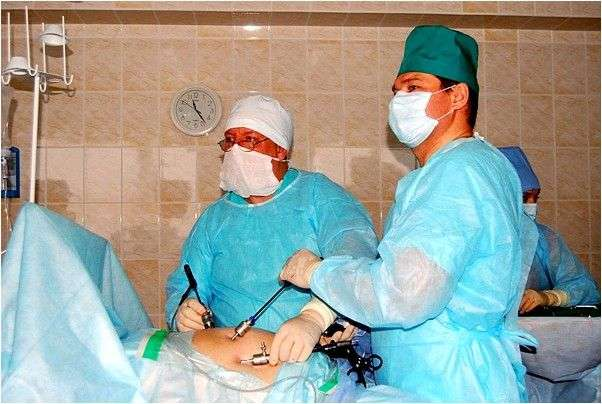 Операция лапароскопия